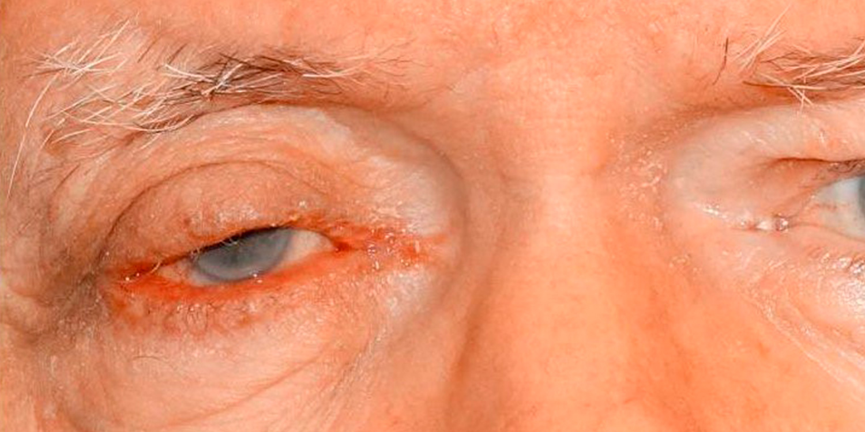 Eyelid Skin Cancer Photos