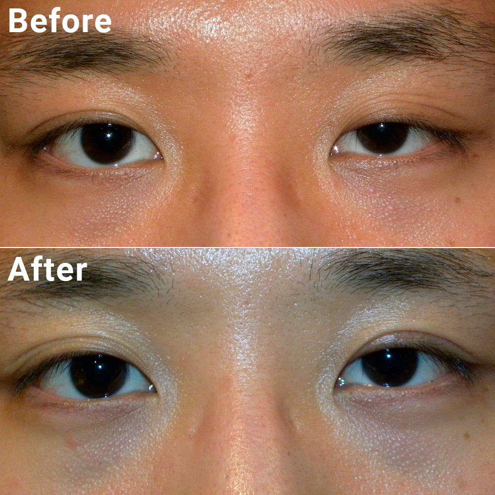 Image result for ptosis asian